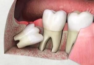 20'lik Diş Çekimi Sonrası Ödem
