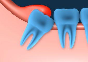 20 lik diş çıkarken diş eti şişmesi