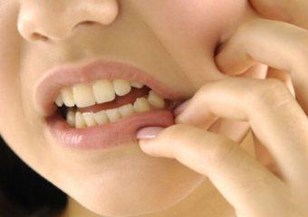 20 lik diş ağrısı