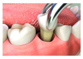 20 lik diş ameliyatı kaç günde iyileşir