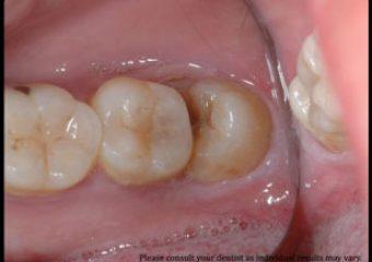 20lik Diş Ameliyatı