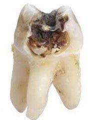 acil diş